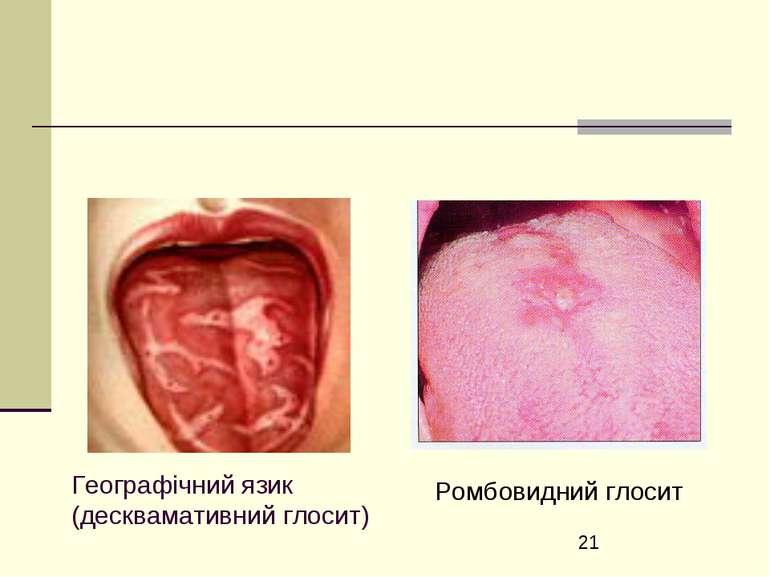 Географічний язик (десквамативний глосит) Ромбовидний глосит