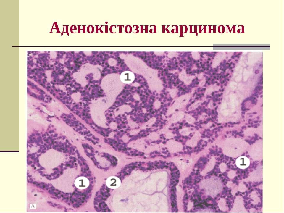 Аденокістозна карцинома