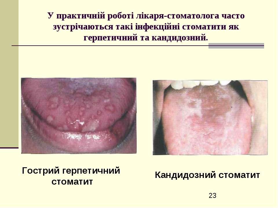 У практичній роботі лікаря-стоматолога часто зустрічаються такі інфекційні ст...