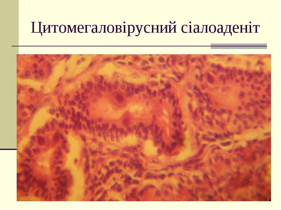 Цитомегаловірусний сіалоаденіт