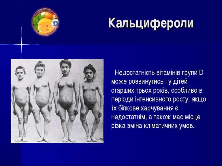 Недостатність вітамінів групи D може розвинутись і у дітей старших трьох рокі...