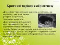 Критичні періоди ембріогенезу До морфологічних порушень відносять анембріонію...
