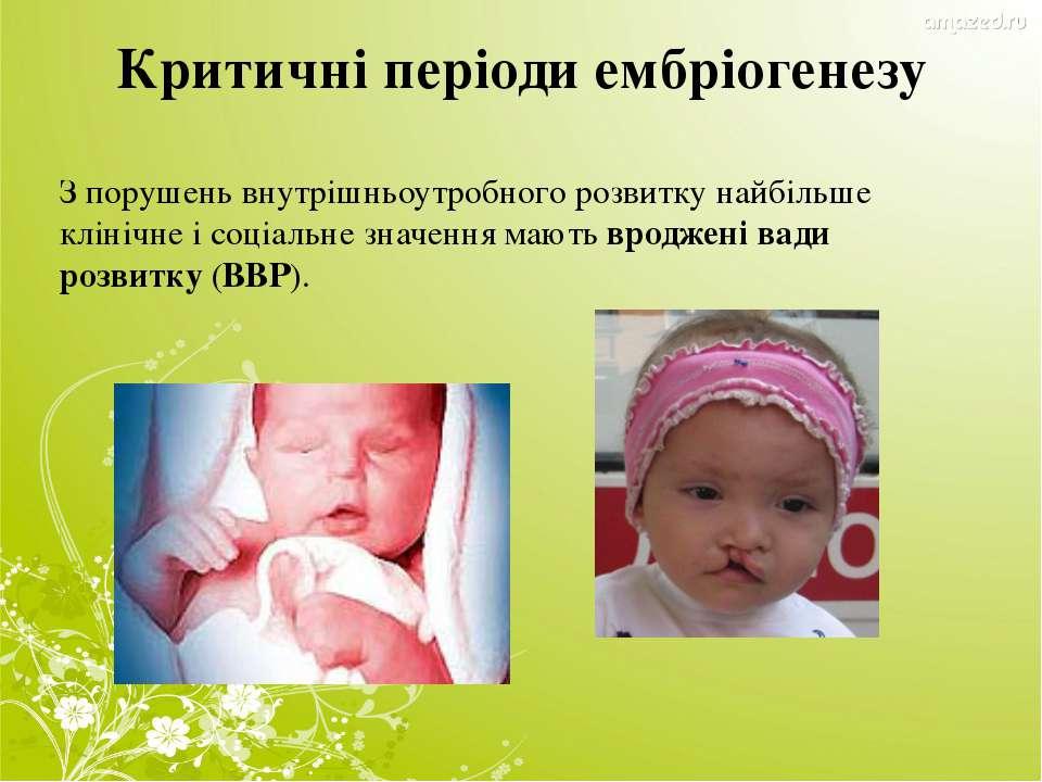 Критичні періоди ембріогенезу З порушень внутрішньоутробного розвитку найбіль...