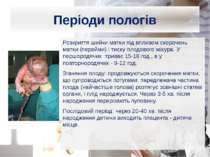 Періоди пологів Розкриття шийки матки під впливом скорочень матки (перейми) і...