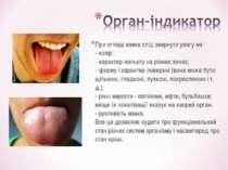 При огляді язика слід звернути увагу на: - колір; - характер нальоту на різни...