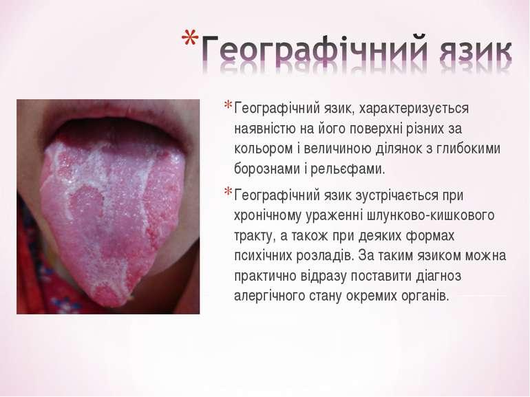 Географічний язик, характеризується наявністю на його поверхні різних за коль...