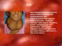 Зоб При гіперфункції щитоподібної залози може з'явитися зоб – захворювання, п...
