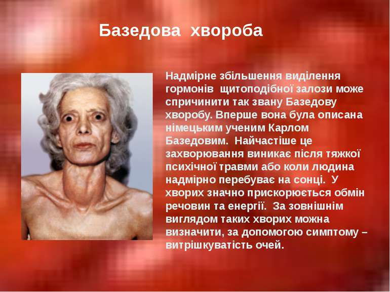 Базедова хвороба Надмірне збільшення виділення гормонів щитоподібної залози м...