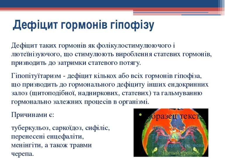Дефіцит таких гормонів як фолікулостимулюючого і лютеїнізуючого, що стимулюют...