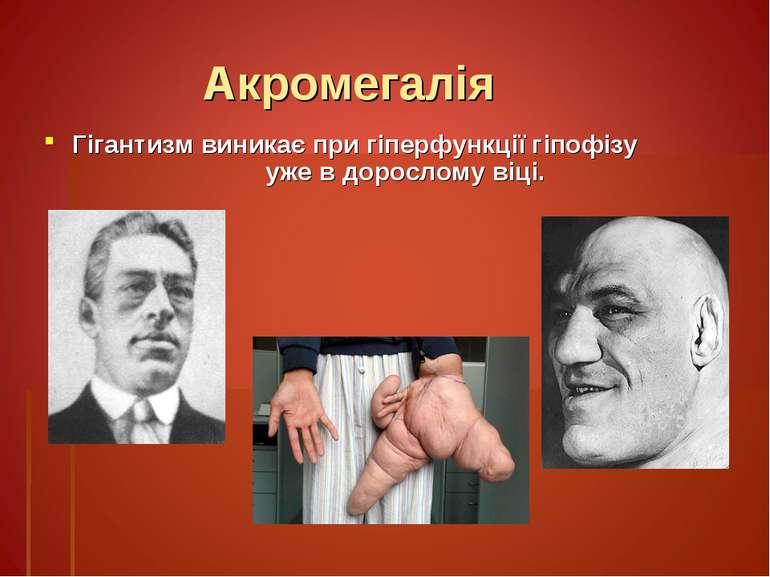 Акромегалія Гігантизм виникає при гіперфункції гіпофізу уже в дорослому віці.