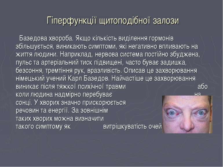Гіперфункції щитоподібної залози Базедова хвороба. Якщо кількість виділення г...