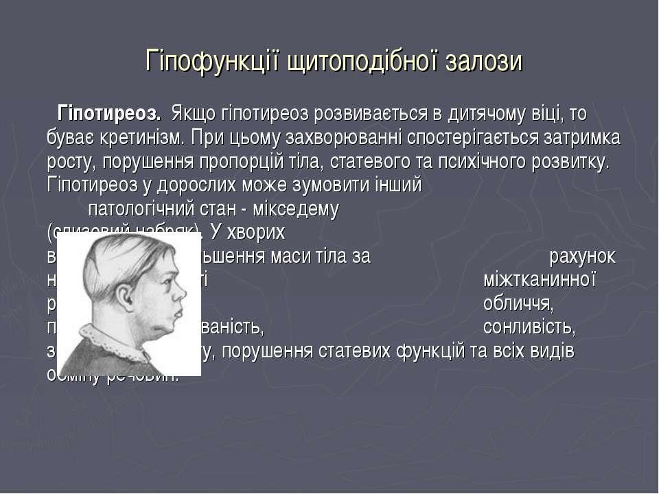 Гіпофункції щитоподібної залози Гіпотиреоз. Якщо гіпотиреоз розвивається в ди...