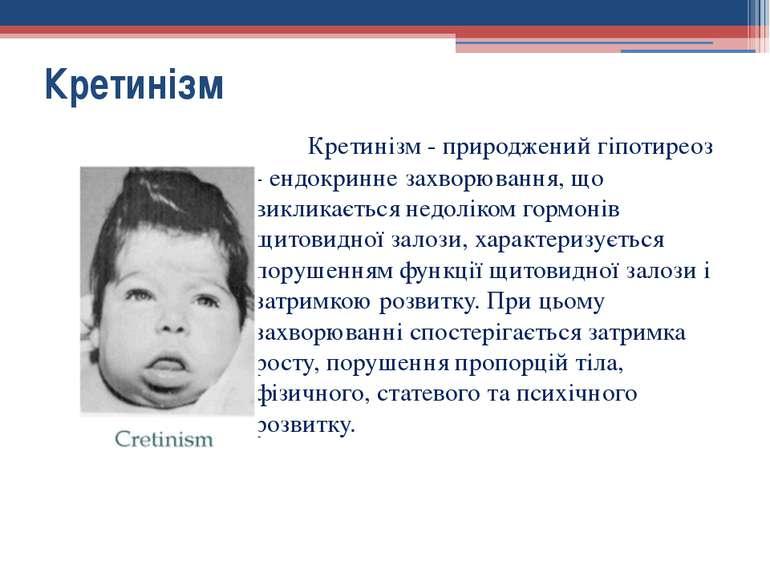 Кретинізм - природжений гіпотиреоз - ендокринне захворювання, що викликається...