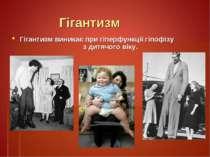 Гігантизм Гігантизм виникає при гіперфункції гіпофізу з дитячого віку.