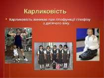 Карликовість Карликовість виникає при гіпофункції гіпофізу з дитячого віку.