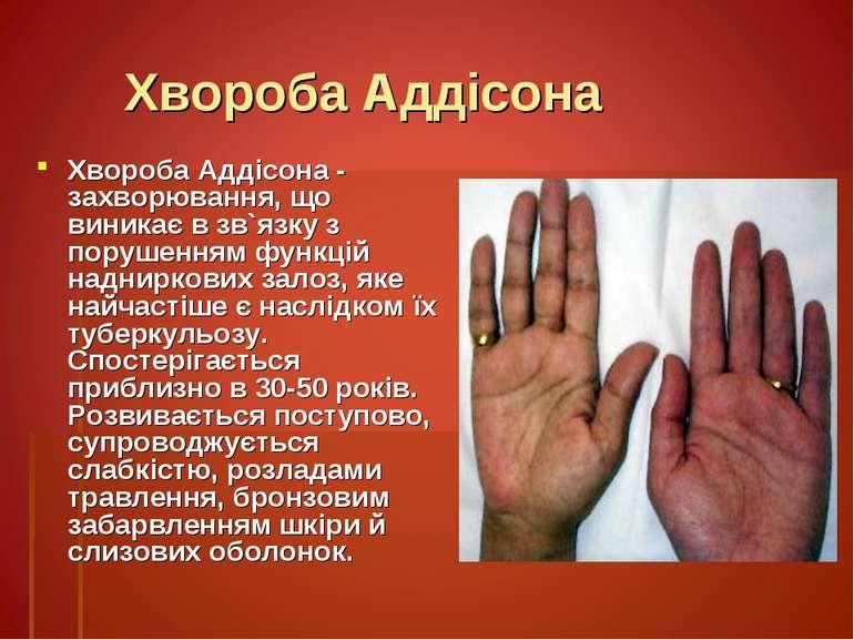 Хвороба Аддісона Хвороба Аддісона - захворювання, що виникає в зв`язку з пору...