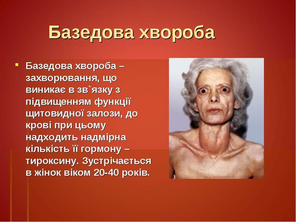 Базедова хвороба Базедова хвороба – захворювання, що виникає в зв`язку з підв...