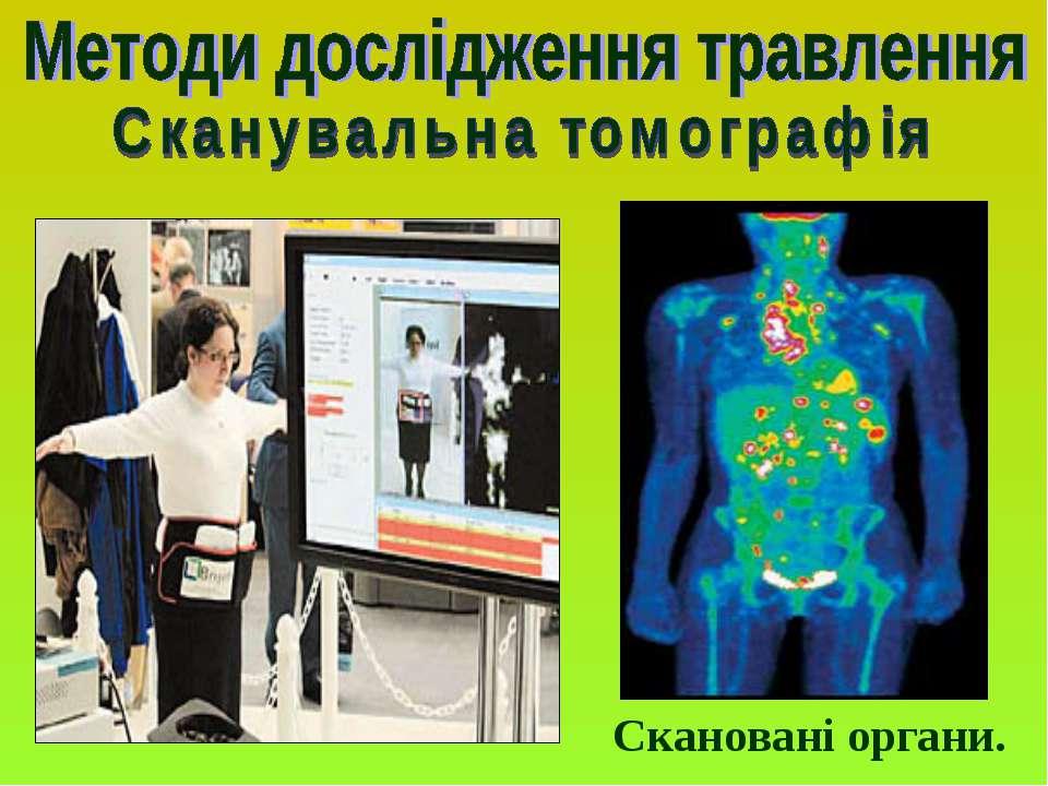 Скановані органи.