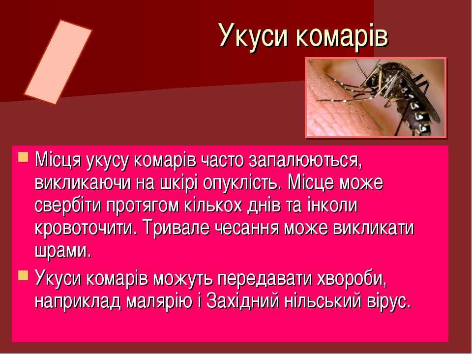 Місця укусу комарів часто запалюються, викликаючи на шкірі опуклість. Місце м...