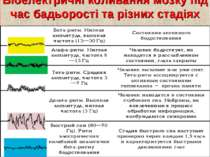 Біоелектричні коливання мозку під час бадьорості та різних стадіях сну