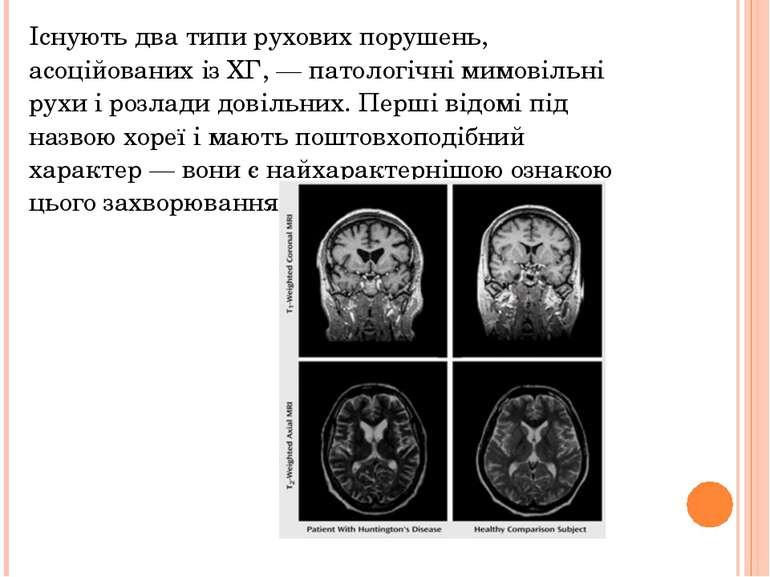 Існують два типи рухових порушень, асоційованих із ХГ, — патологічні мимовіль...