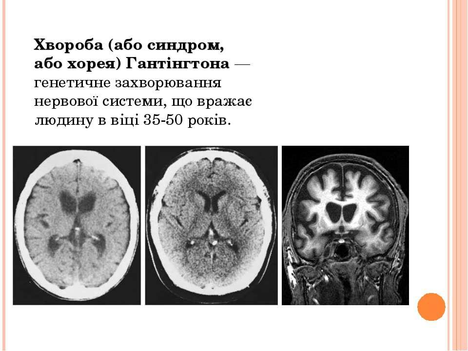 Хвороба (або синдром, або хорея) Гантінгтона — генетичне захворювання нервово...