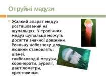 Отруйні медузи Жалкий апарат медуз розташований на щупальцях.У тропічних мед...