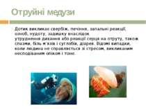 Отруйні медузи Дотик викликає свербіж, печіння, запальні реакції, озноб, нудо...