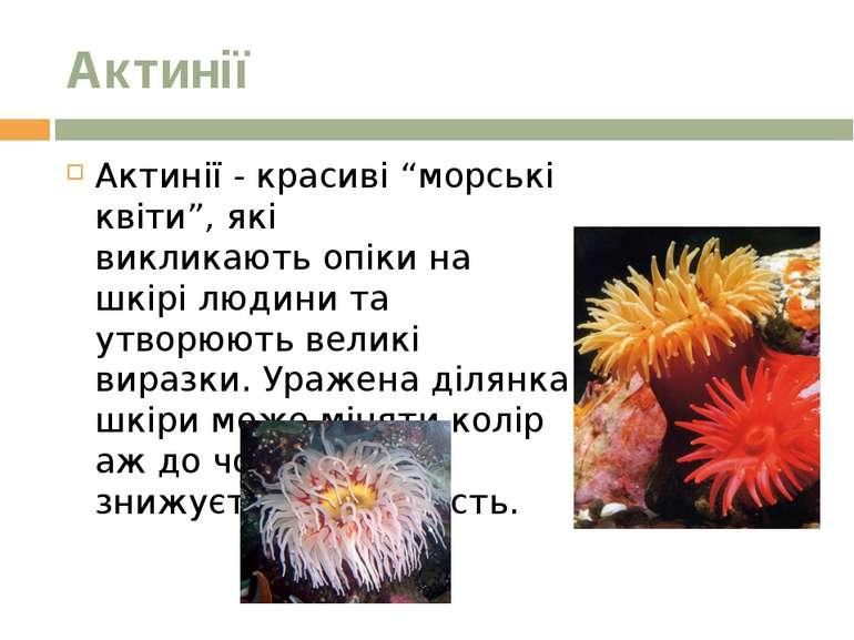 """Актинії Актинії - красиві """"морські квіти"""", які викликаютьопікина шкірі люди..."""