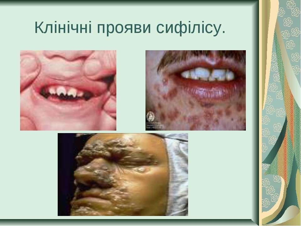 Клінічні прояви сифілісу.