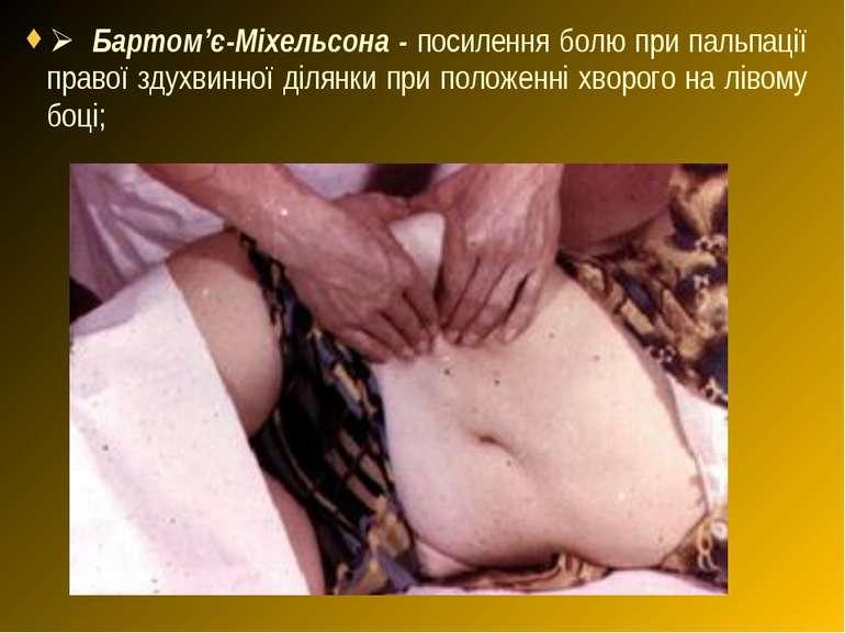 Ø Бартом'є-Міхельсона - посилення болю при пальпації правої здухвинної ділянк...