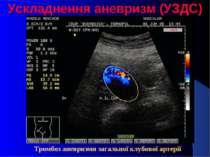 Ускладнення аневризм (УЗДС) Тромбоз аневризми загальної клубової артерії