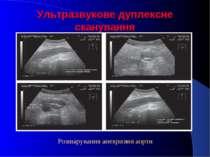 Ультразвукове дуплексне сканування Розшарування аневризми аорти