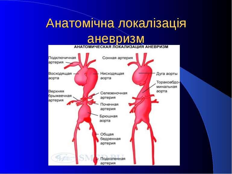 Анатомічна локалізація аневризм