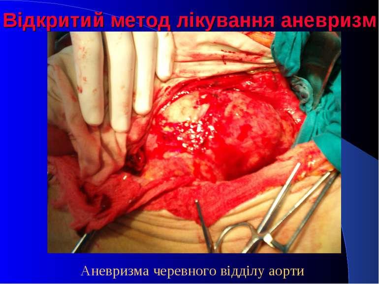 Відкритий метод лікування аневризм Аневризма черевного відділу аорти