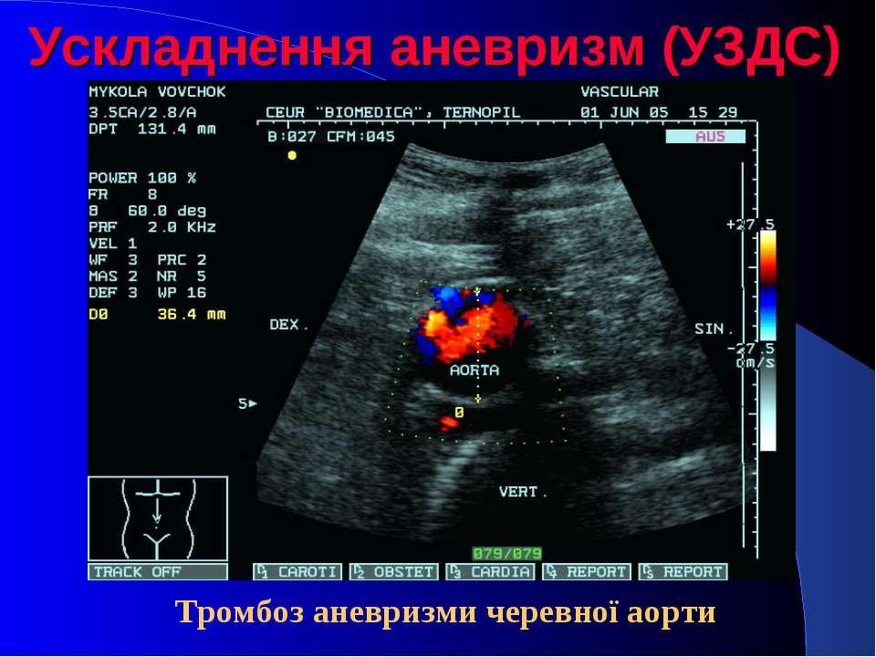 Ускладнення аневризм (УЗДС) Тромбоз аневризми черевної аорти