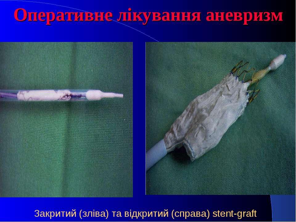 Оперативне лікування аневризм Закритий (зліва) та відкритий (справа) stent-graft