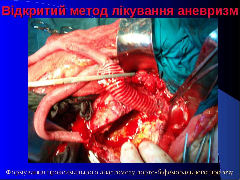 Відкритий метод лікування аневризм Формування проксимального анастомозу аорто...