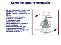 """Комп""""ютерна томографія КТ рентгенівську трубку, яка обертається, з пучком у ф..."""