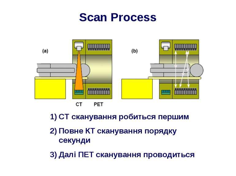 Scan Process CT сканування робиться першим Повне КТ сканування порядку секунд...