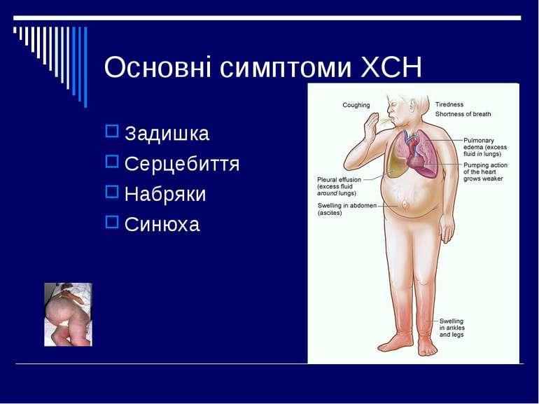 Основні симптоми ХСН Задишка Серцебиття Набряки Синюха