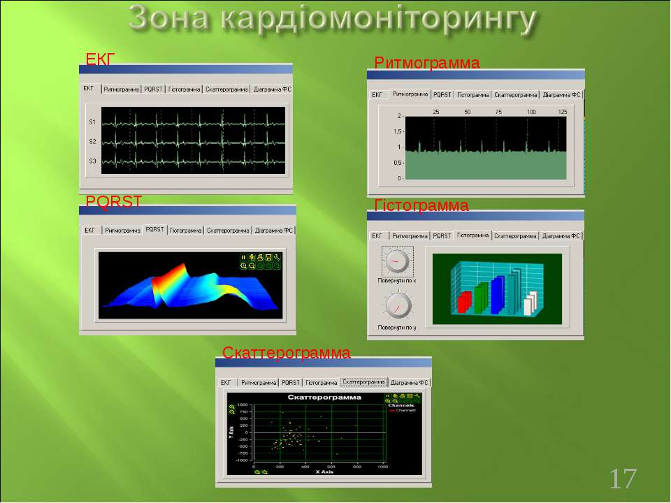 Гістограмма Ритмограмма ЕКГ PQRST Скаттерограмма *