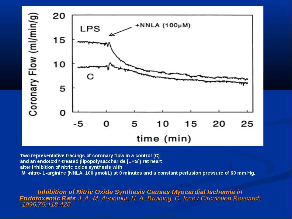 Inhibition of Nitric Oxide Synthesis Causes Myocardial Ischemia in Endotoxemi...