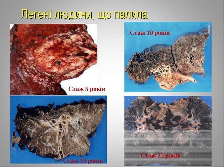Легені людини, що палила Стаж 5 років Стаж 10 років Стаж 15 років Стаж 25 років