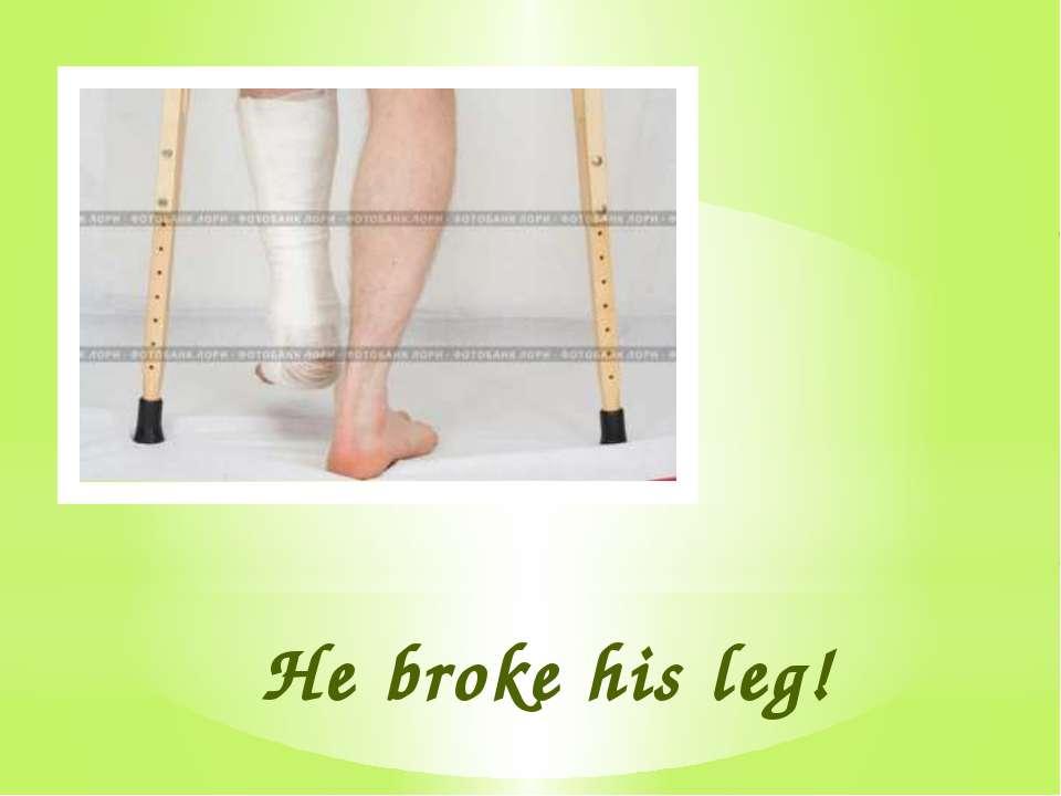 He broke his leg!