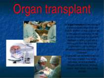 An organ transplant is the moving of a whole or partial organ from one body t...