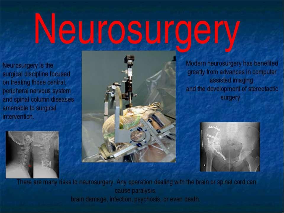 Neurosurgery Neurosurgery is the surgical discipline focused on treating thos...