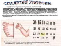 Існує 12 тисяч спадкових захворювань із них лікується 2: це фенілкетонурія і ...