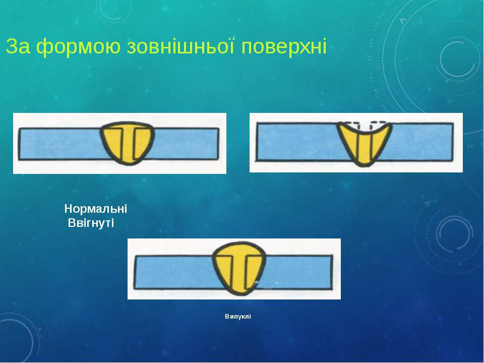 За формою зовнішньої поверхні Нормальні Ввігнуті Випуклі