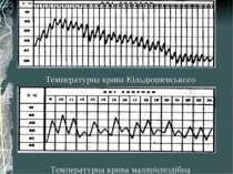 Температурна крива малярієподібна Температурна крива Кільдюшевського